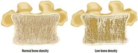 костная ткань в позвоночнике
