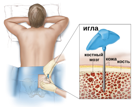 Сколько платят донору костного мозга в России с 2021